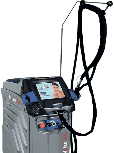 Deka Motus AX Laser Hair Removal 400x537 1920w